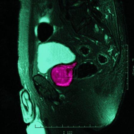 Tumor roentgen