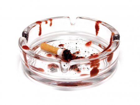 Ashtray with cigarette extinguished and blood drop...