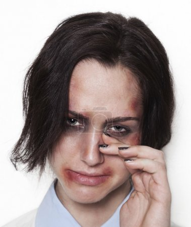 Beaten up girl looking and crying