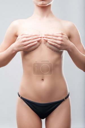 Caucasian womans abdomen marked with lines for abdominal cosme