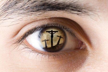 The John eye