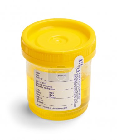 Urine Sample