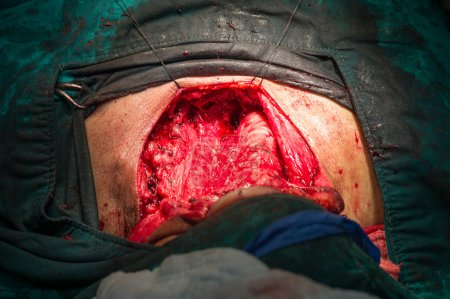 After total thyroidectomy