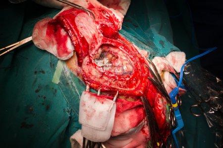 Craniectomy in case of brain tumor at frontal lobe