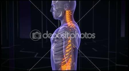 Back Pain Treatment. HD